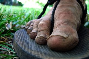 Photograph of a muddy and dirty foot after hiking the Sac River Trail in huaraches